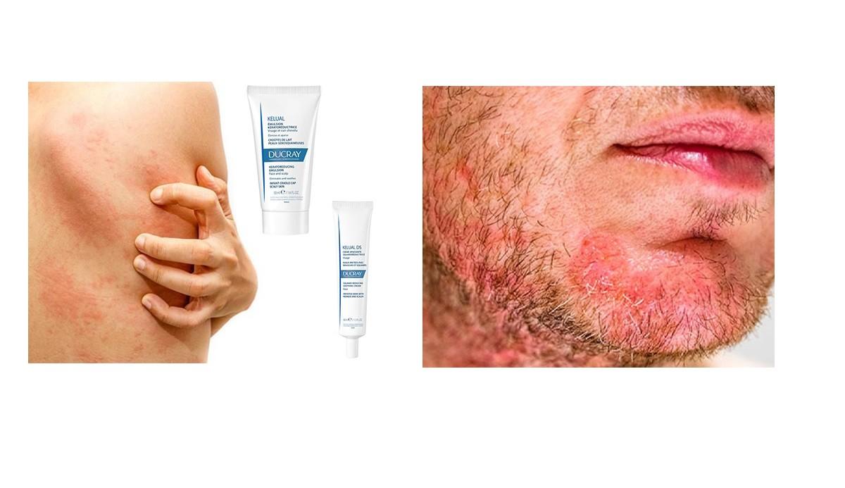 ¿Cómo tratar la dermatitis seborreica?