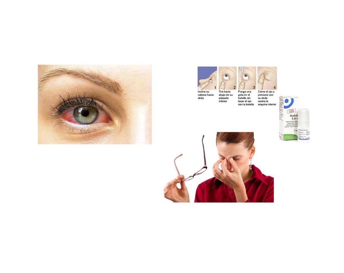 ¿Por qué utilizar Hyabak contra el ojo seco?