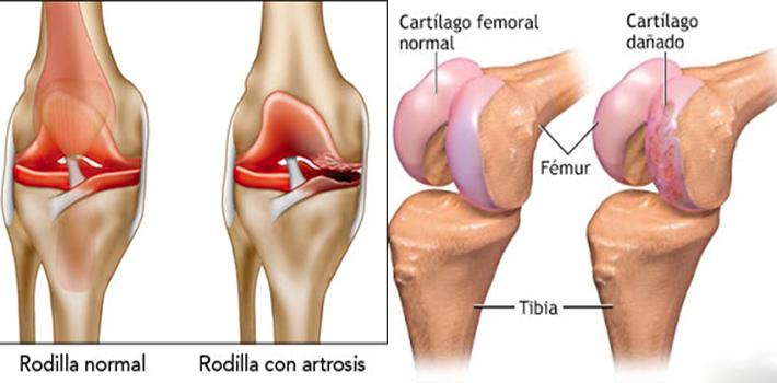 sintomas de solfa syllable artritis de rodilla