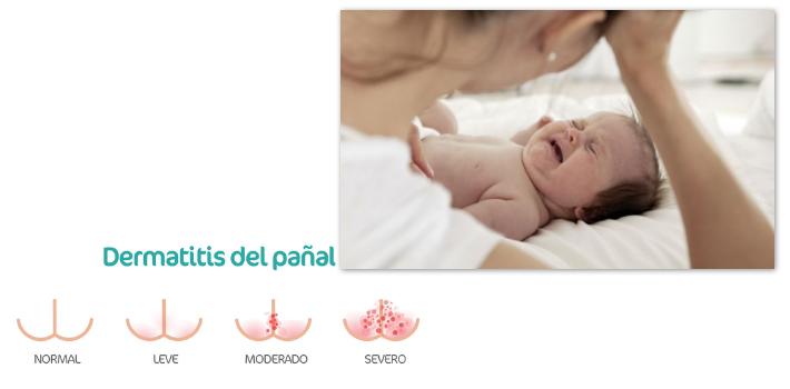 anillo rojo en la piel del bebé
