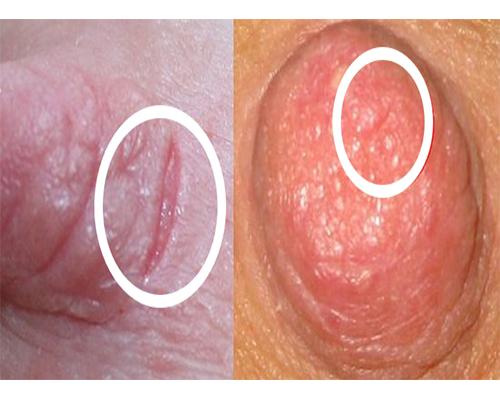 grietas en los pechos en el embarazo